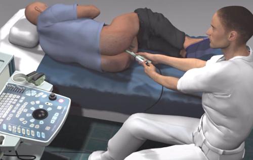 сколько стоит биопсия предстательной железы